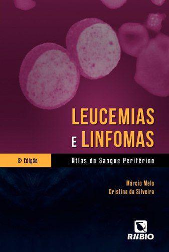 Livro Leucemias E Linfomas