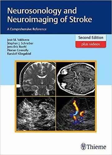 Livro Neurosonology And Neuroimaging Of Stroke