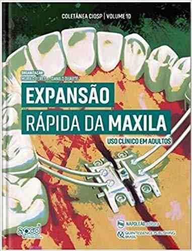 Expansão Rápida da Maxila