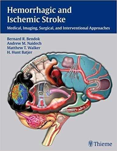 Livro Hemorrhagic And Ischemic Stroke, 1ª Ed 2012