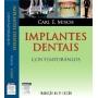 Implantes Dentais Contemporâneos - 3ª Ed. Carl Misch