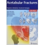 Livro Acetabular Fractures: Diagnosis, Indications, Treatment Strategies