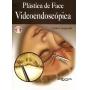 Plástica De Face Videoendoscopica