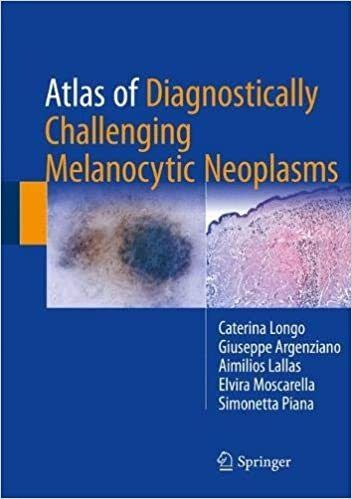 Livro Atlas Of Diagnostically Challenging Melanocytic Neopla