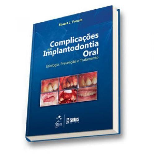 Livro Complicações em Implantodontia Oral Etiologia, Preven Tratament