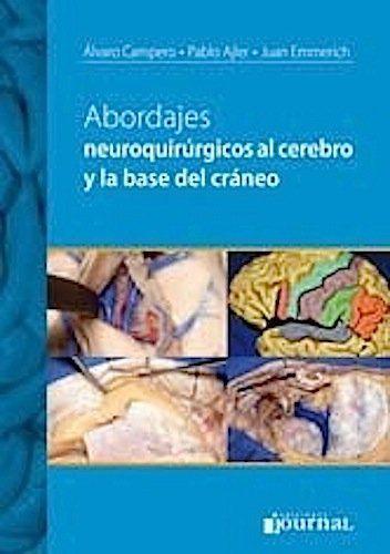 Abordajes Neuroquirurgicos Al Cerebro Y La Base De Craneo