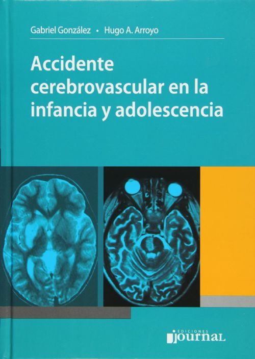 Livro Accidente cerebrovascular en la infancia y adolescencia