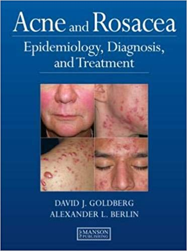 Livro Acne and Rosacea: Epidemiology, Diagnosis and Treatment