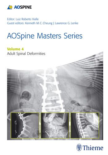 Livro Aospine Masters Series, Volume 4: Adult Spinal Deformities