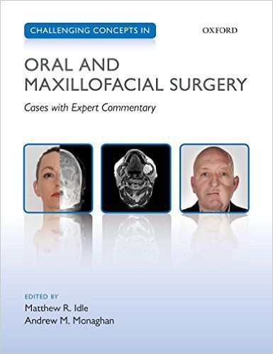 Livro Challenging Concepts in Oral and Maxillofacial Surgery: Cases with Expert Commentary