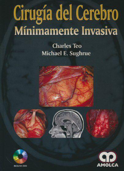 Cirugia Del Cerebro Minimamente Invasiva