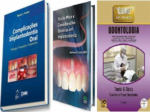 Complica Implan Oral + Tecido Mole Em Implant  + Quimo Odonto