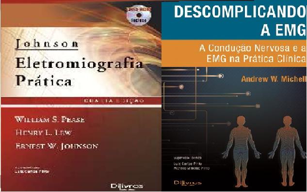 Descomplicando A Emg + Johnson Eletromiografia Prática