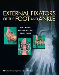Livro External Fixators of the Foot and Ankle