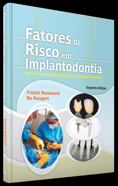 Fatores De Risco Em Implantodontia - Analise Clinica Simplificada Para Um Tratamento Previsível