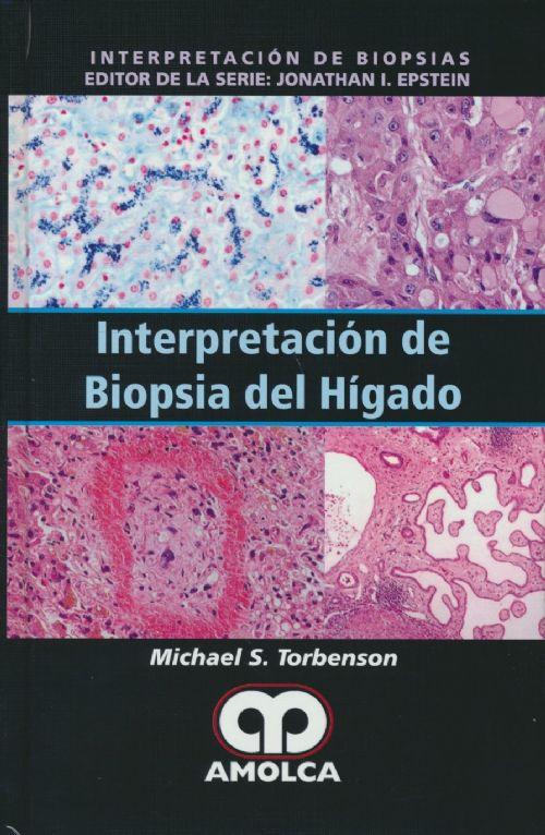 Livro Interpretacion De Biopsia Del Higado