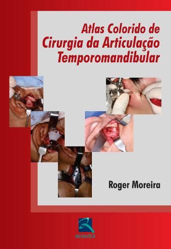 Livro Atlas Colorido De Cirurgia Da Articulação Temporomandibular