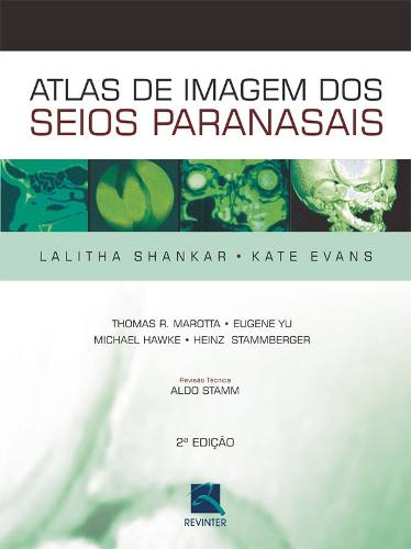 Livro Atlas De Imagem Dos Seios Paranasais