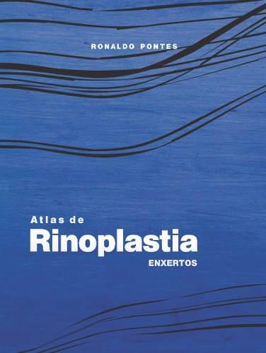 Atlas De Rinoplastia