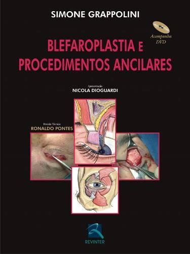 Livro Blefaroplastia E Procedimentos Ancilares