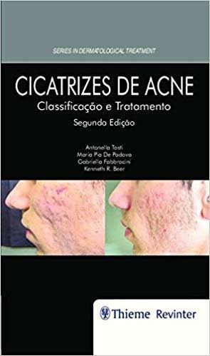 Livro Cicatrizes De Acne: Classificação E Tratamento