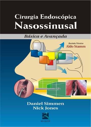 Cirurgia Endoscópica Nasossinusal