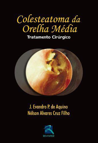 Colesteatoma Da Orelha Média