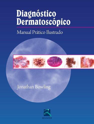 Livro Diagnóstico Dermatoscópico