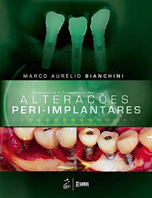 Livro Diagnóstico E Tratamento Das Alterações Peri-implantar