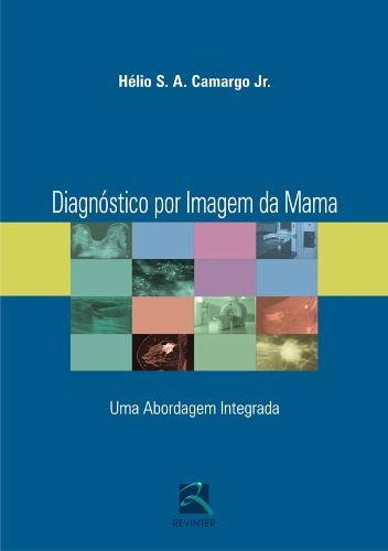 Diagnóstico Por Imagem Da Mama