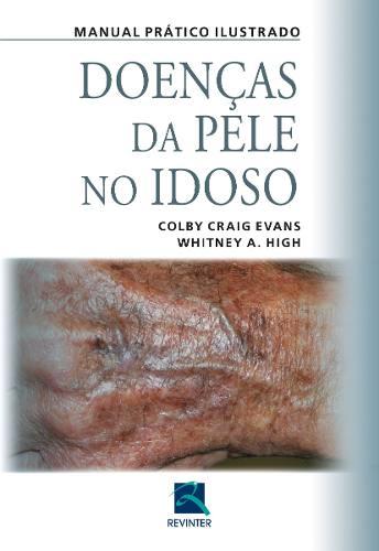 Livro Doenças Da Pele No Idoso