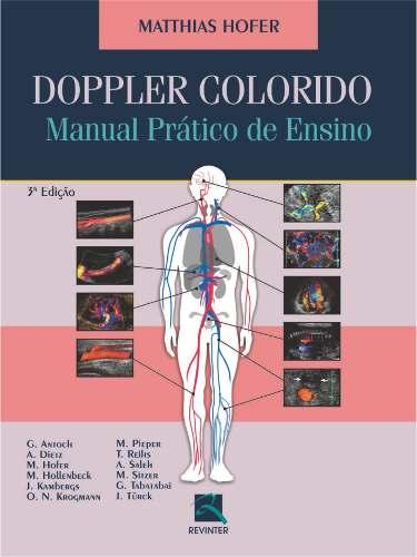 Doppler Colorido