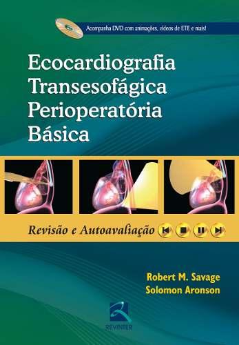 Ecocardiografia Transesofágica Perioperatória Básica
