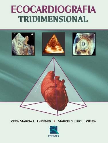 Livro Ecocardiografia Tridimensional