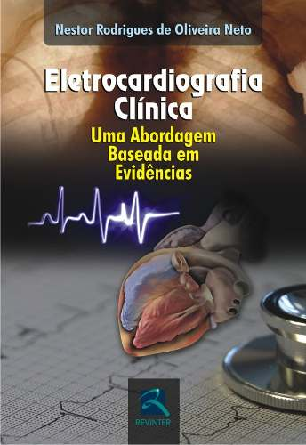 Eletrocardiografia Clínica