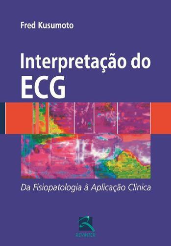 Interpretação Do Ecg