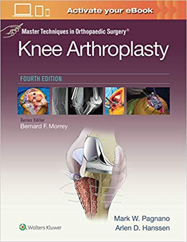 Livro Master Techniques in Orthopedic Surgery: Knee Arthroplasty