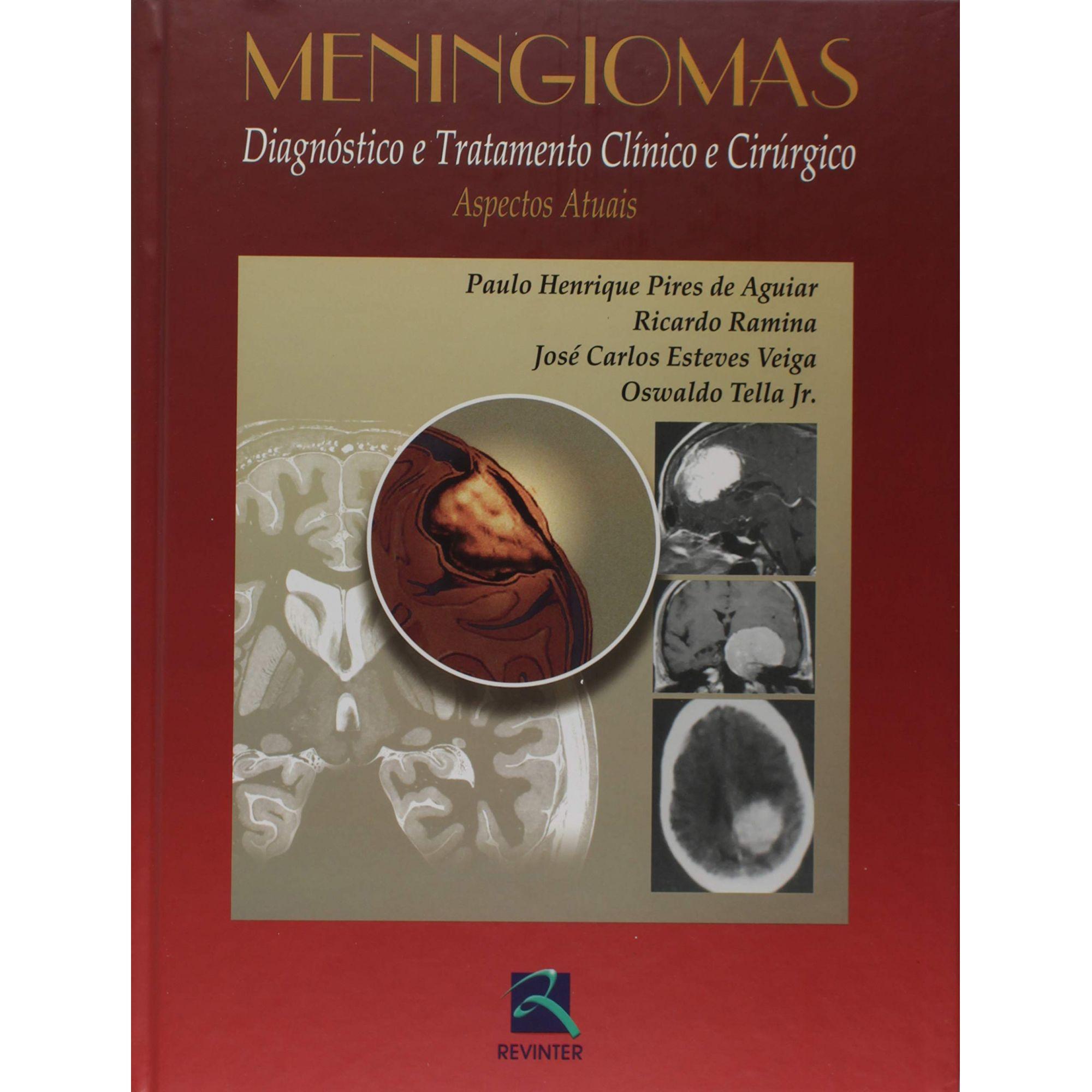 Livro Meningiomas