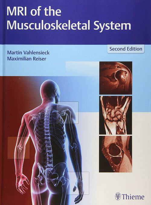 Livro MRI of the Musculoskeletal System