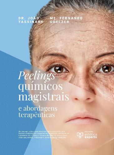 Peelings Químicos Magistrais E Abordagens Terapêuticas