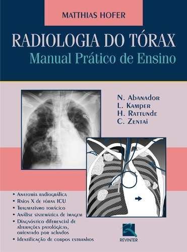 Radiologia Do Tórax