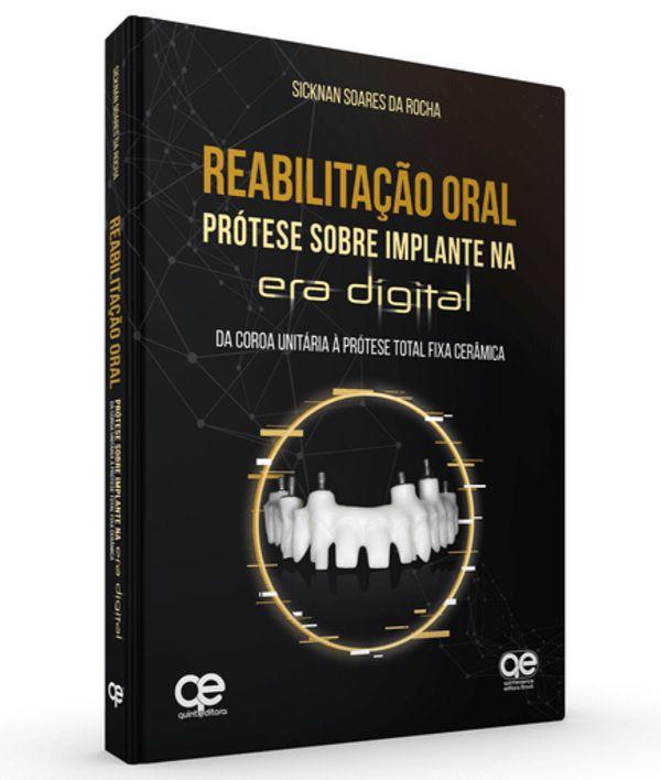 Livro Reabilitação Oral Prótese Sobre Implante Na Era Digital