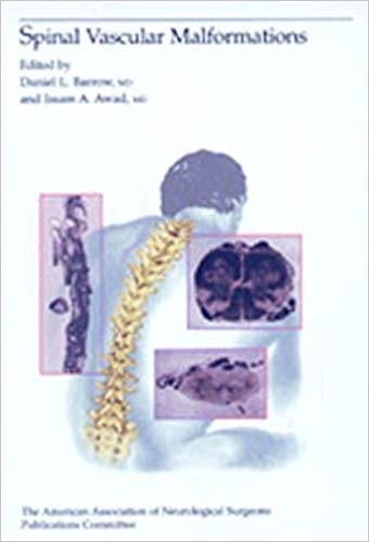 Livro Spinal Vascular Malformations