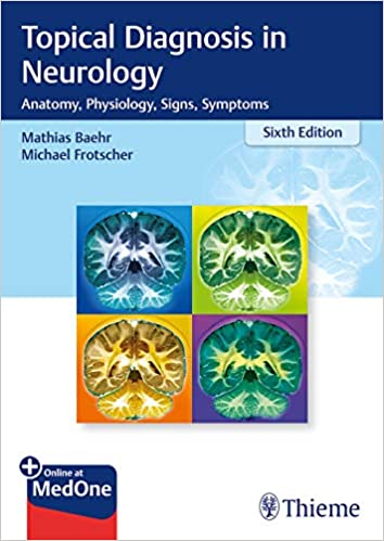 Topical Diagnosis in Neurology