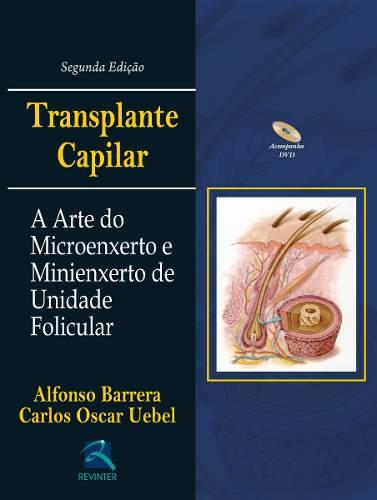Livro Transplante Capilar
