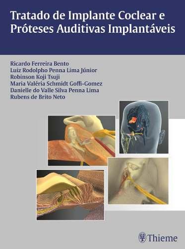 Livro Tratado De Implante Coclear E Próteses Auditivas Implantávei