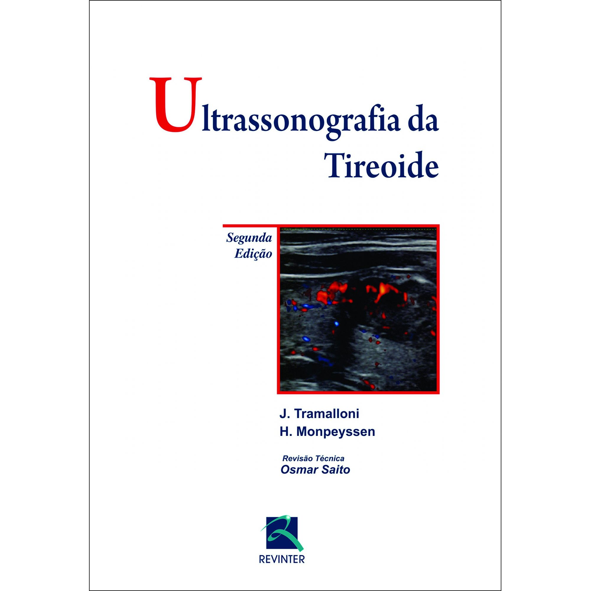 Ultrassonografia Da Tireoide