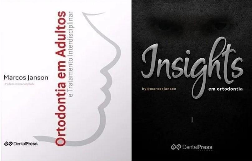 Livros Ortodontia em Adultos + Insights em Ortodontia