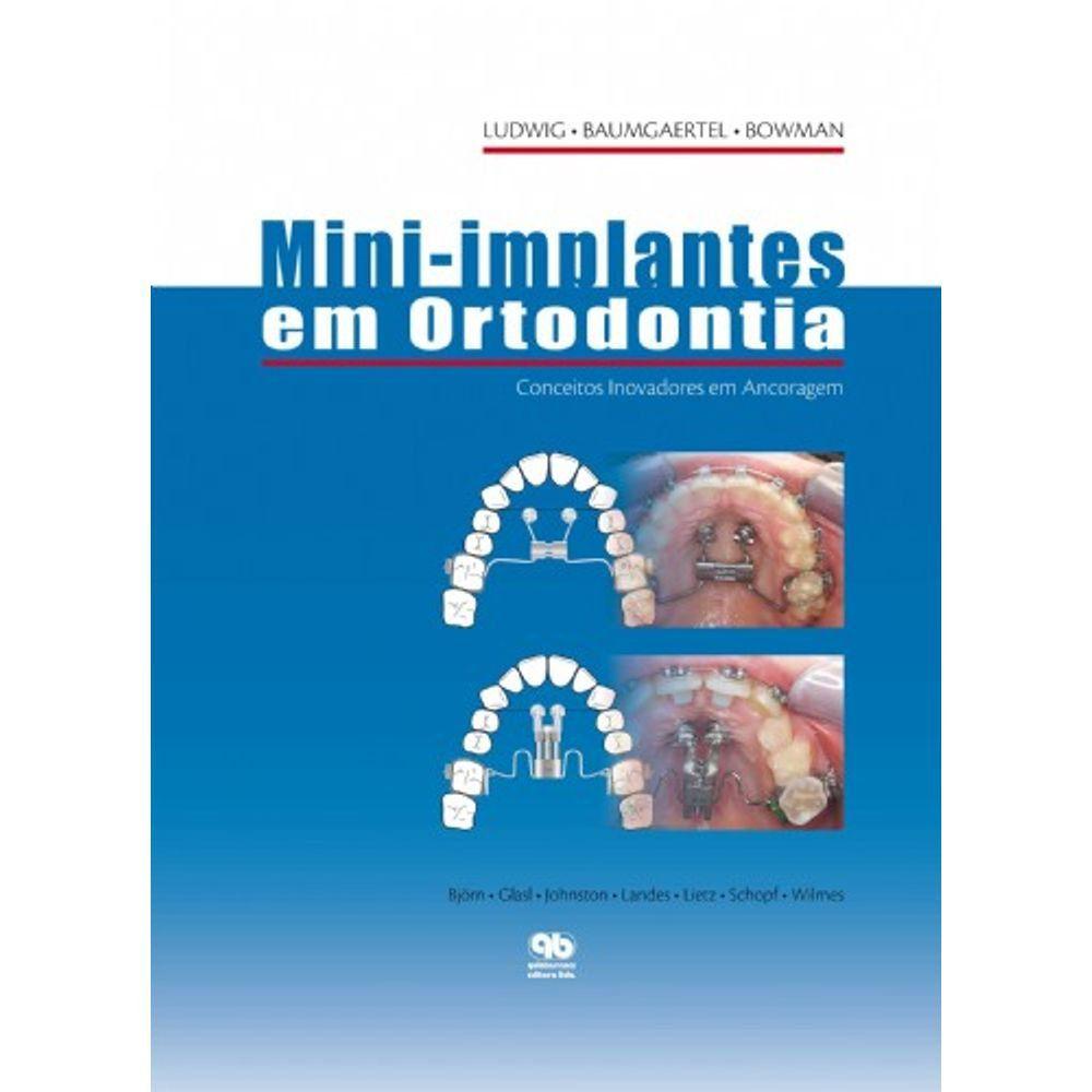 Livro Mini-Implantes Em Ortodontia
