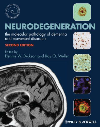 Livro Neurodegeneration: The Molecular Pathology of Dementia and Movement Disorders